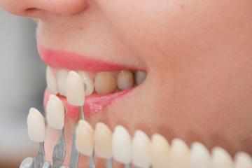 ציפוי למינייט לשיניים כמו של הכוכבים בהוליווד - דר' ק. מור-גן