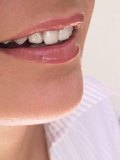 """ציפויי שיניים אצל ד""""ר ק. מור-גן, חיוך מושלם בן רגע"""